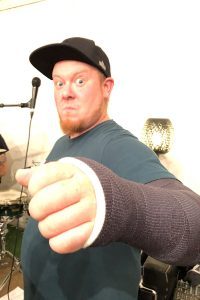 Arm in Gips